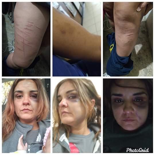 MUJER AGREDIDA SE ARMA DE VALOR Y DENUNICA PUBLICAMENTE EN REDES SOCIALES.